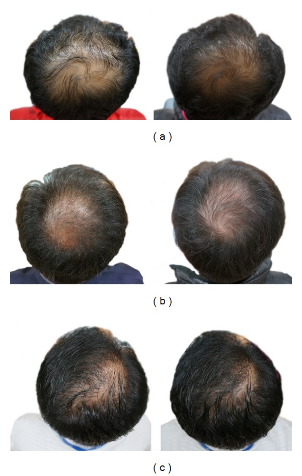 results of pumpkin seed oil on hair loss